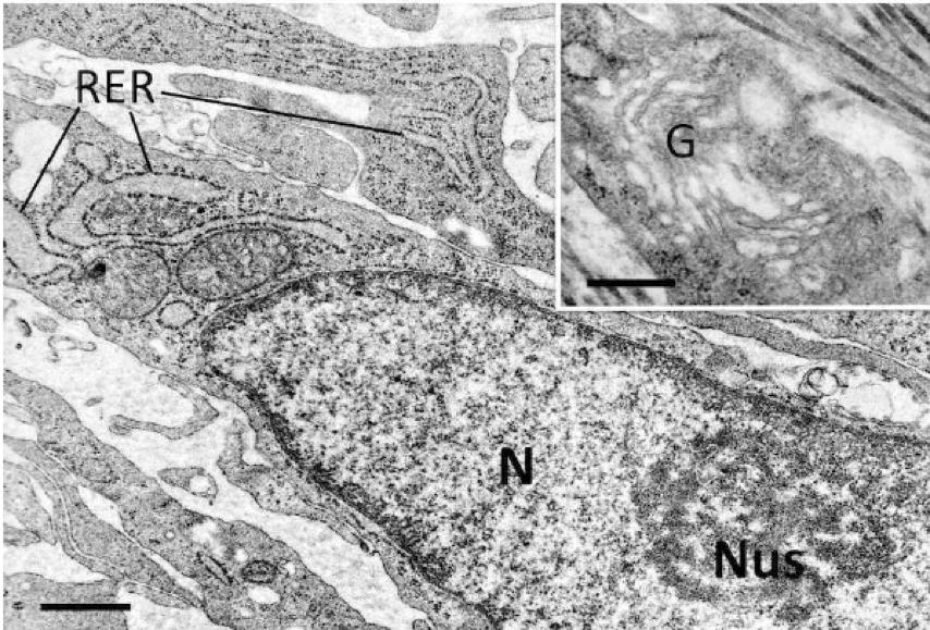 Морфологічні зміни в шкірі після обробки пегильованим філером