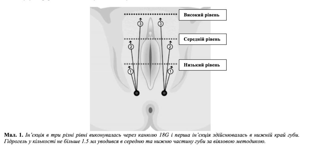 Використання нового полімеру для збільшення об'єму та відновлення великих статевих губ