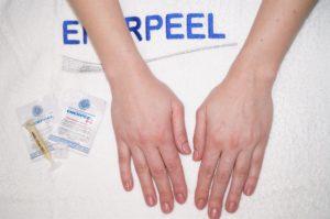 Как получить выраженный эффект коррекции возрастных изменений рук с помощью химического пилинга Enerpeel Hands
